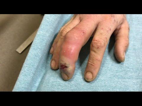 severe finger infection
