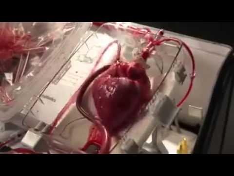 Tecnologia OCS per mantenere vivi gli organi (Organ Care System)