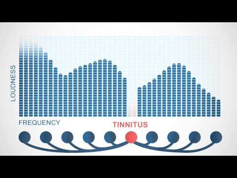 Tinnitus Treatment With Your Favorite Music – Tinnitracks