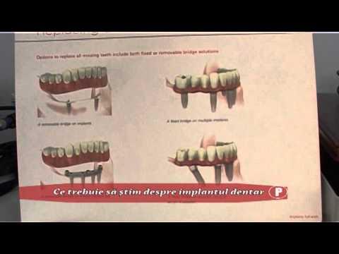 (P) Ce trebuie să ştim despre implantul dentar