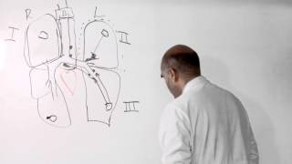 Cleveland Clinic thoracic surgeon Sudish Murthy, MD, PhD, discusses diagnosis of stage 3 or 4 lung cancer, which means that that the cancer has spread ...