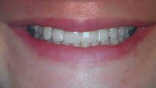 Improving Worn Down, Discolored Teeth