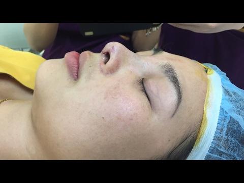 Dáng mũi siêu đẹp sau khi nâng