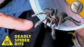 DEADLIEST SPIDER BITE! by Brave Wilderness