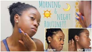 Hey everyone! In this video I will share my skin care routine which helped clear my adult acne!Save 70% off the Ultimate Skin Spa, go to http://vpwow.com/bee70Be sure to share this video with anyone that may find it helpful! :)P R O D U C T S  M E N T I O N E D :Cetephil Gentle Skin Cleanserhttp://amzn.to/1qbqYFM100% Pure Jojoba Oilhttp://amzn.to/1OeGDPRNeutrogena Sunscreen SPF 70http://amzn.to/1QXoAbqNeutrogena Makeup Remover Wipeshttp://amzn.to/1QXoVLpDistilled H20 & Sea Salt TonerClinque All About Eyeshttp://amzn.to/1NprGunRetin-A Micro Gel .08%Prescribed by a DermatologistHydroquinone 4%Prescribed by a DermatologistNadinolahttp://amzn.to/1T93qvvCheck out My Acne Journey:http://bit.ly/1SSWbFSCheck out my new VLOG Channel!!! http://bit.ly/1VMWHtqK E E P U P W I T H M E Instagram: @aprilbeee_http://bit.ly/1Rv8bBwSnapchat: @aprilbeee1Facebook: April Beeehttp://on.fb.me/1MqdCeDTwitter: @aprilbeee_http://bit.ly/1HqTEPEF O R   B U S I N E S S   I N Q U I R I E S Email: april.beee1@gmail.comM U S I C:http://bit.ly/1WbOv7cT H A N K S   F O R   W A T C H I N G !!!FTC: Thanks to Vanity Planet for teaming up with me on this video! All opinions are my own. Links are affiliates. :)
