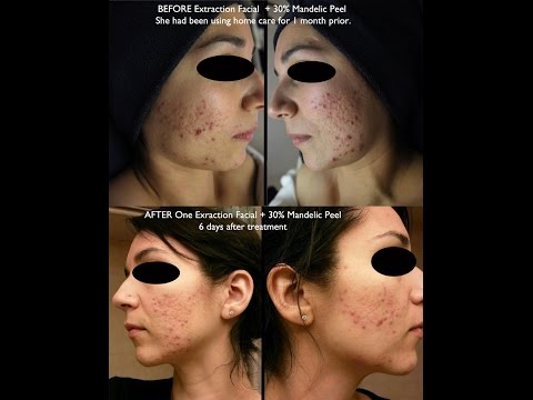 Professional Acne Extractions Pimple, Blackhead |Esthetician Aesthetician School