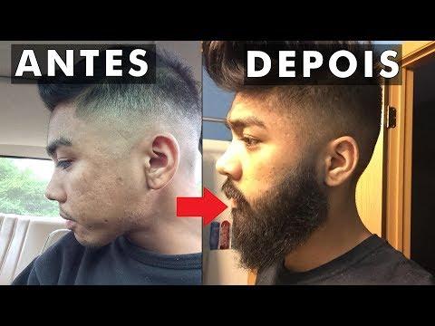 É possível fazer a barba crescer em quem não tem?