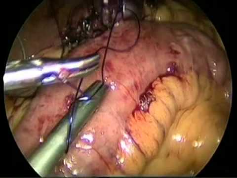 Revision of Sleeve gastrectomy to Mini Gastric Bypass