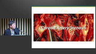 제14회 서울아산병원 외과 연수강좌 : 혈관외과 미리보기