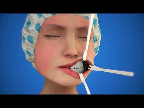 Quy trình gọt mặt V line 3D