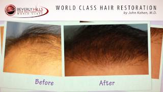 FUT Hair Surgery treating Male Pattern Baldness By Beverly Hills Hair Restoration Clinic