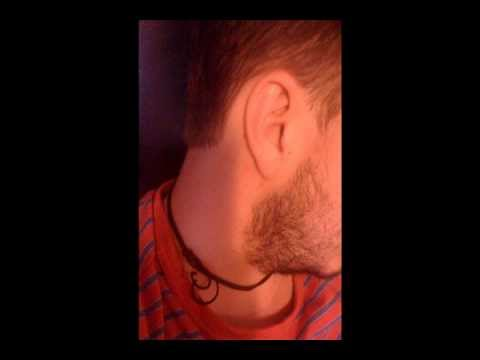 Tinnitus Cure – My Ringing and Buzzing in Ears as Gone Away Thanks to these Tinnitus Remedies