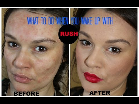 what to do if you have rash on your face - contact dermatitis