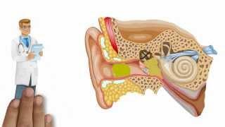 Qu'est-ce que le système auditif ?