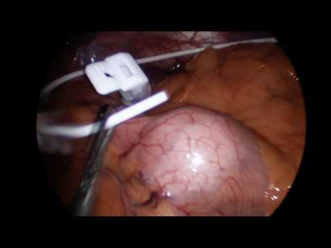 Gastric Banding - Straightforward Laparoscopic Method