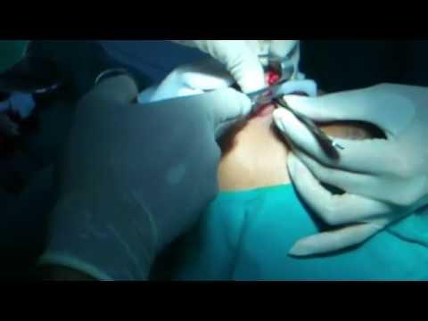 ทำจมูก - แพทย์ เริ่ม ผ่าตัด ไม่น่ากลัวอย่างที่คิด แนะนำ ครับครายอยากทำ นพ ป.. ที่ นาคา ภูเก็ต.