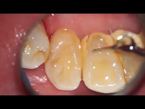 清除牙垢的簡便方法