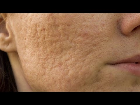 चेहरे के रोमछिद्रो को 2 दिन में हमेशा के लिए भरे   how to close open pores from face easily at home
