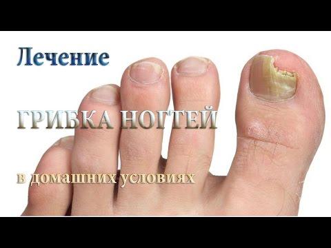 Как лечить грибок ногтей в домашних условиях (натуральные, народные методы лечения)