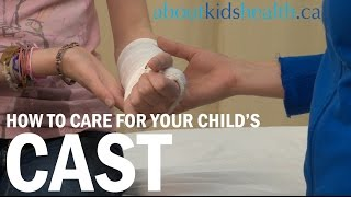 How to Care for your Child's Cast