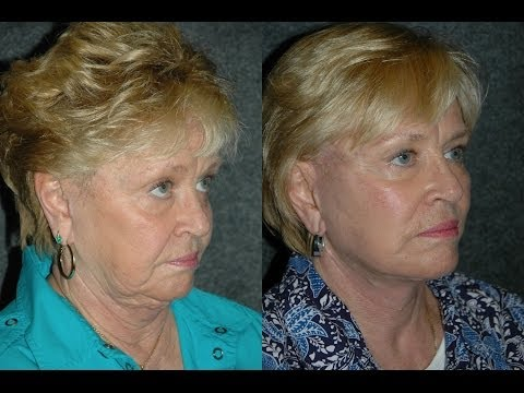 Patient Reviews Facelift Revision by Dr Andrew Jacono After Prior Lifestyle Lift