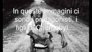 I FIGLI DI CHERNOBYL