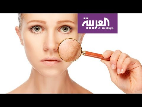 العرب اليوم - بهذه الطرق يمكنك تفادي تصبغات الوجه