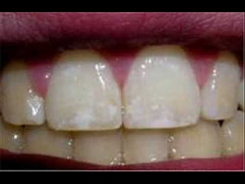 How to Identify Dental Fluorosis