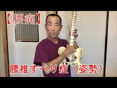【腰痛】腰椎すべり症(姿勢)①