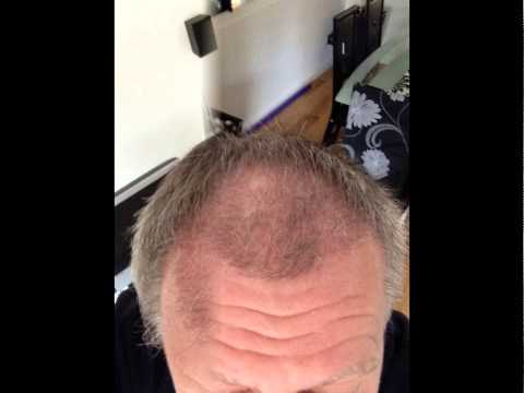 2000 FUE Before & After 22 Weeks Transplant Patient Diary   UK Hair Transplant Clinics