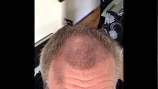 Video 2000 FUE Before & After 22 Weeks Transplant Patient Diary   UK Hair Transplant Clinics MP3, 3GP, MP4, WEBM, AVI, FLV Juli 2018