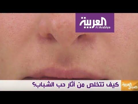 العرب اليوم - شاهد| طرق فعالة ومختلفة لعلاج ندبات حب الشباب