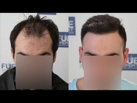 FUE Hair Transplant (3500 grafts in NW - Class V/A) By Dr. Juan Couto - FUEXPERT CLINIC_A plasztikai sebészet kulisszatitkai. A legmodernebb eljárások, és orvosi hibák. Szilikon völgy