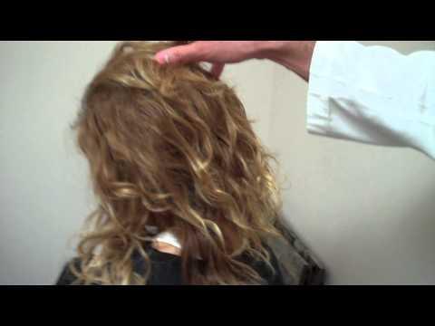 Female FUE Hair Case