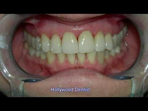 Hollywood Dentist -s