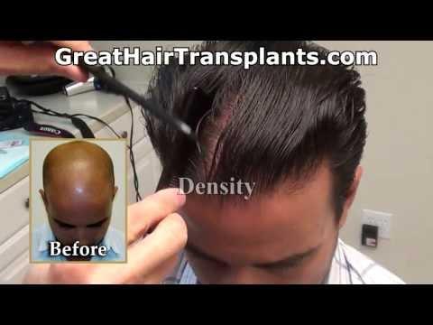 Dr. Brett Bolton Hair Transplant Results_A plasztikai sebészet kulisszatitkai. Legeslegjobbak