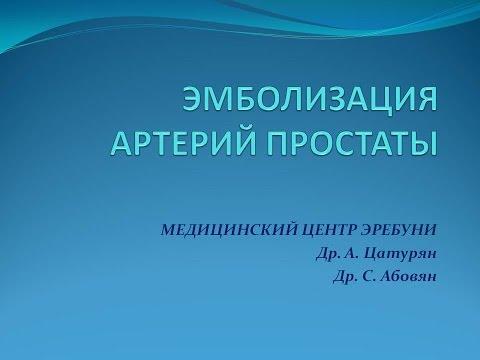 Новые методы лечения аденомы простаты. В Армении впервые проведена эмболизация артерий простаты.