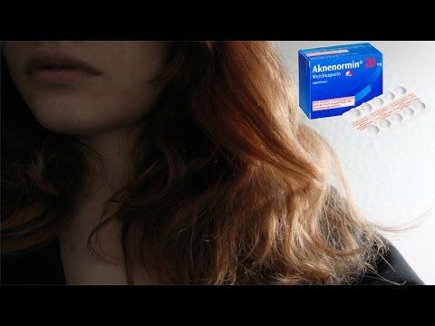 Meine Erfahrung mit unreiner Haut & Tabletten gegen Akne