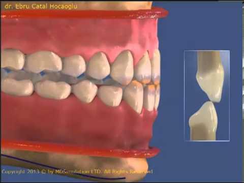 Diş gıcırtdatma Bruksizm