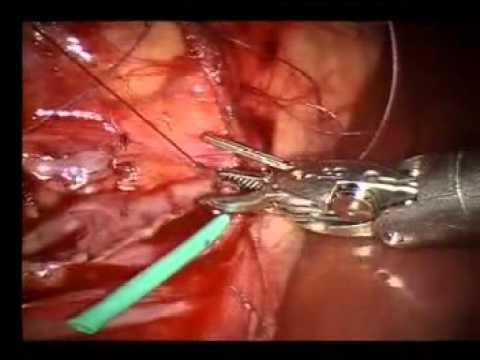 Robotic Pediatric Surgery