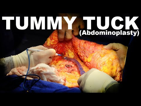 Tummy Tuck (Abdominoplasty) - Dr. Paul Ruff | West End Plastic Surgery