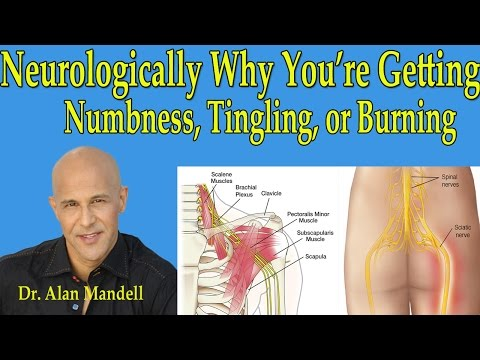 Neurologically Why You're Getting Numbness,Tingling, or Burning in Arms or Legs - Dr Mandell