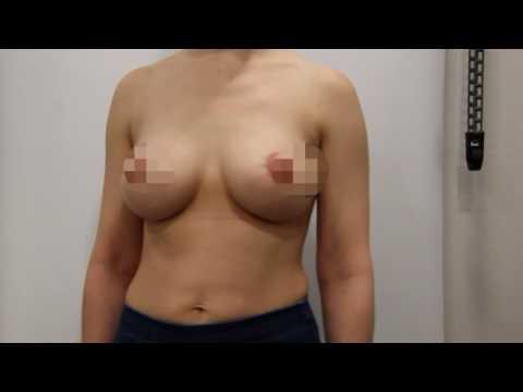 Увлечение груди: до и после