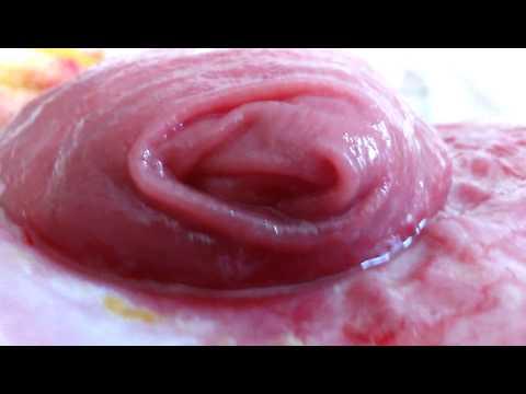Fistula (видео)