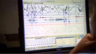 Diagnostic Sleep Study