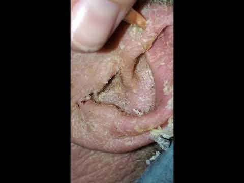 peel that waxy ear
