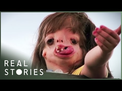 Juliana: the girl with the new face (2015) - The story of juliana wetmore, the girl born without a face. [46:07]