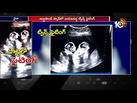 Unborn Twins spotted fighting inside Mother's Womb | Social Media Viral Videos