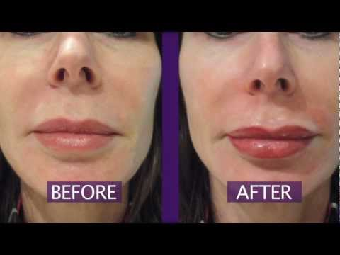 Permanent Makeup Lips – Permanent Lip Color