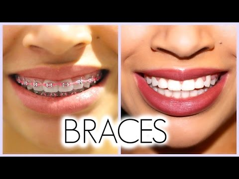 MY 3 YEAR BRACES EXPERIENCE!! (Before/After + Q & A)